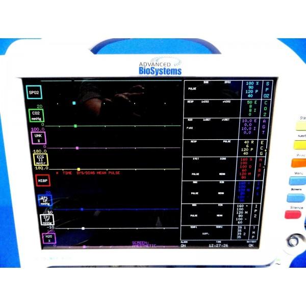 Pace Tech Vitalmax 4000 Color Monitor